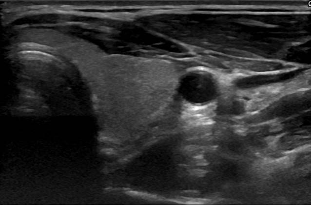Thyroid Segmentation in Ultrasonography Dataset | OpenCAS